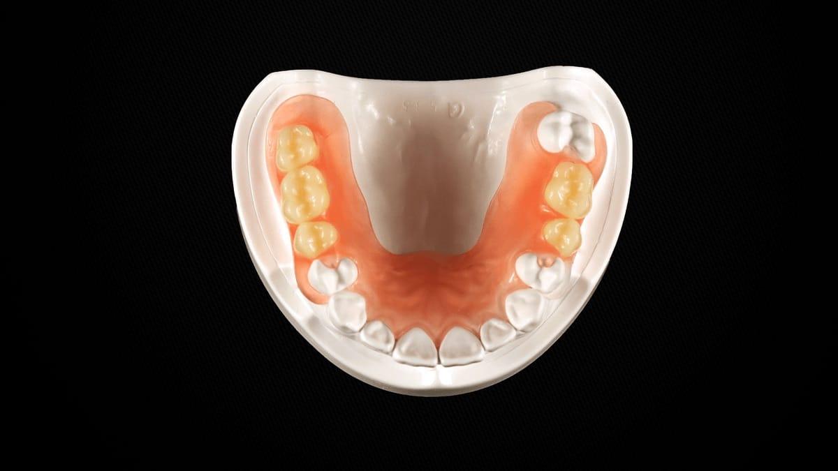 Le Valplast permet la fabrication de prothèse dentaire présentant de nombreux avantages.