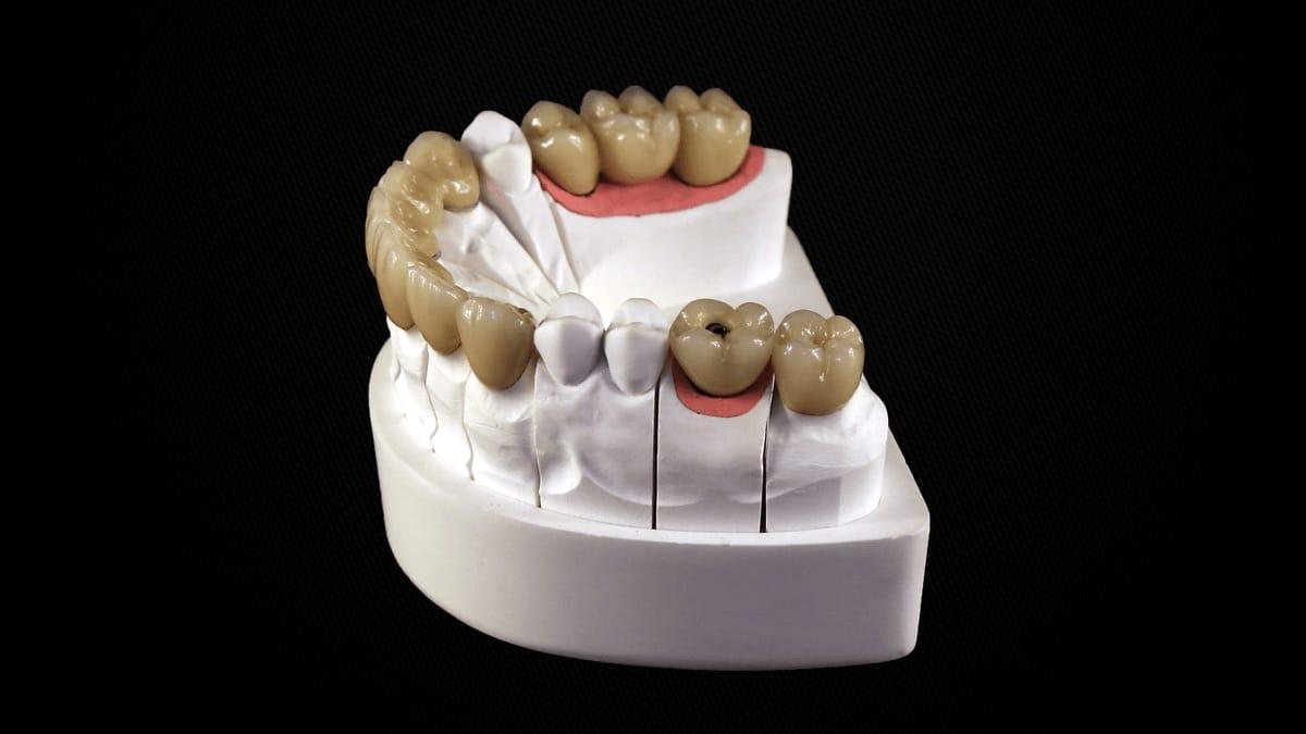 Implant Céramique CAD CAM T.