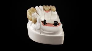 Implant Céramique CAD-CAM S.